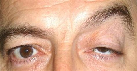 Ptosis: Cause, Symptom, and Treatment | MD-Health